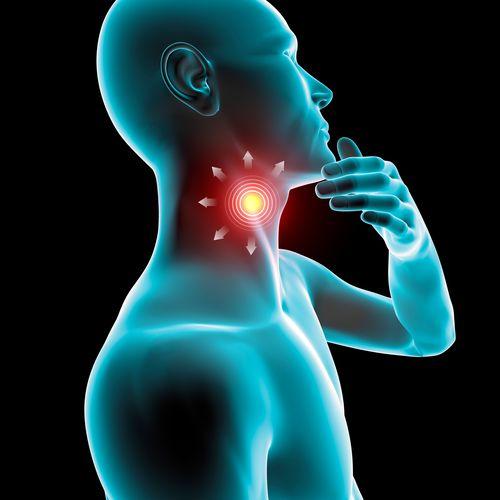 Mal di gola infiammazione arrossamento dolore